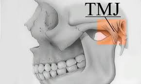tmj joint pain